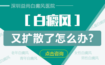 深圳白癜风的危害有哪些