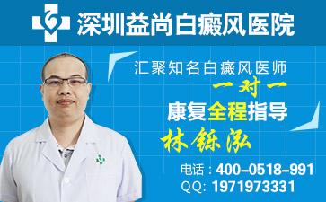 白癜风深圳医院在哪里